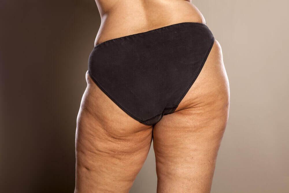 hormone-based cellulite creams